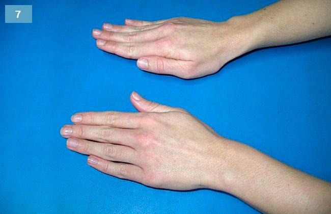 Ćwiczenie wyprostu palców