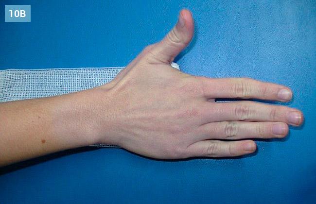 Ćwiczenie rozwijania i zwijania bandaża