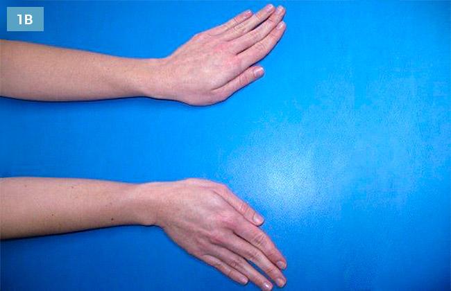 Ćwiczenie odwodzenie łokciowe i promieniowe ręki