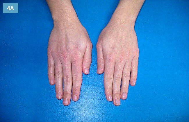 Ćwiczenie odwodzenie i przywodzenie palców
