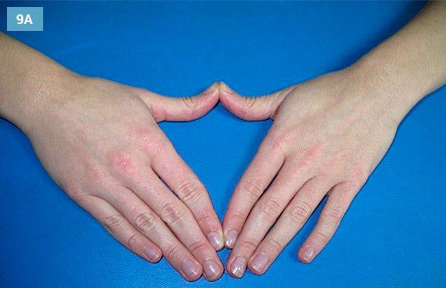 Ćwiczenie rozciągania przyśrodkowych części rąk