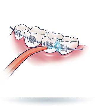 Irygacja zębów z aparatem ortodontycznym
