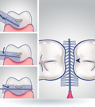 Technika czyszczenia zębów szczoteczką miedzyzębową
