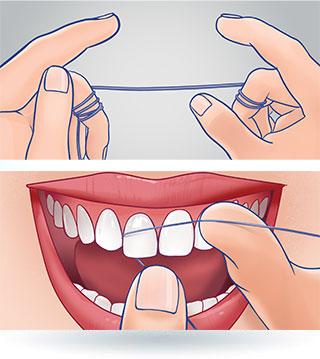Technika nitkowania zębów