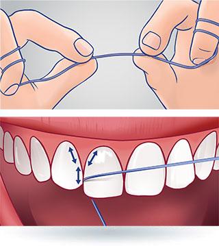 Oczyszczenie przestrzeni międzyzębowych nitką dentystyczną