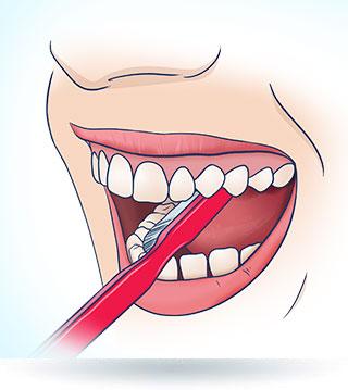 Szczotkowanie zębów od strony policzka